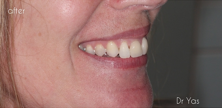 Before dental treatment at Park Dental Care