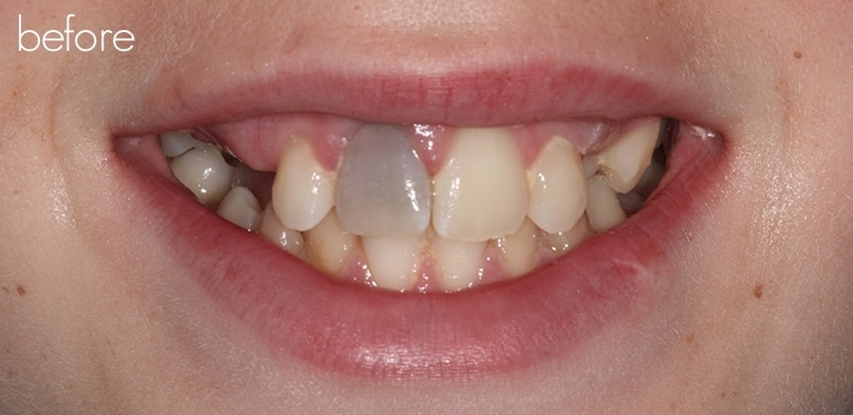 Before dental treatment at Park Dental Care
